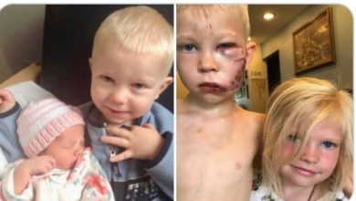 صورة بالصور | طفل يدافع عن شقيقته الصغيرة ويخسر وجهه بعد هجوم حيوان مفترس